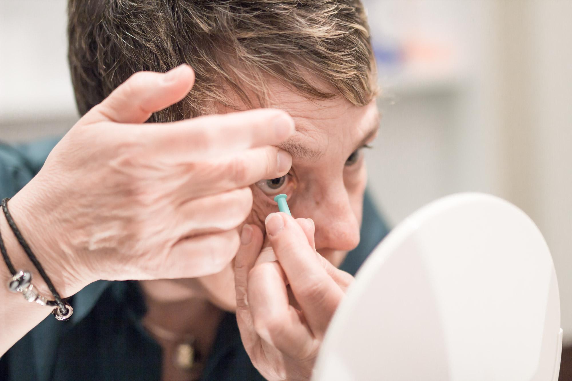 Dreamlens auf dem Auge - auch das aussetzen der Linse ist kein Problem