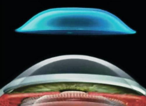 Berechnung der Kontaktlinse nach Topographie, subjektiver Brillenrefraktion und Hornhautdurchmesser.