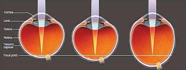 Eine Zunahme der Augenbaulänge bedeutet eine Zunahme der Myopie.
